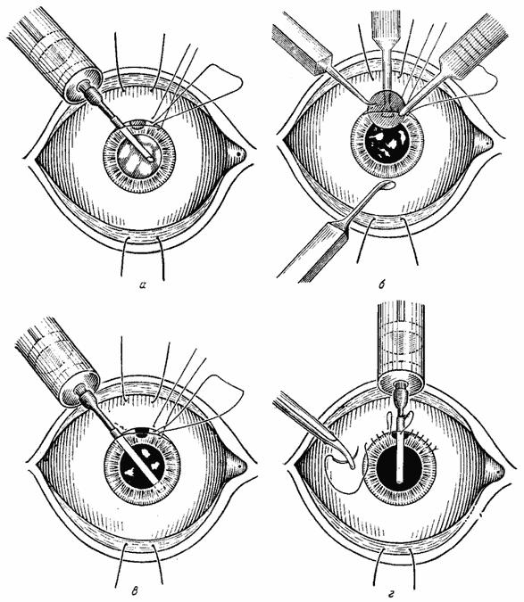 Интракапсулярная экстракция катаракты ход операции - катарактынет