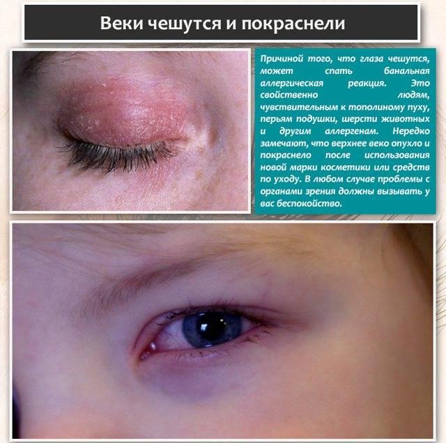 Почему чешется глаз в уголке около носа — allergich.com