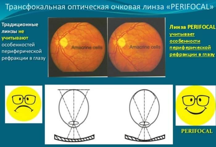 Бифокальные контактные линзы и дети - коррекция зрения у детей – очки.net