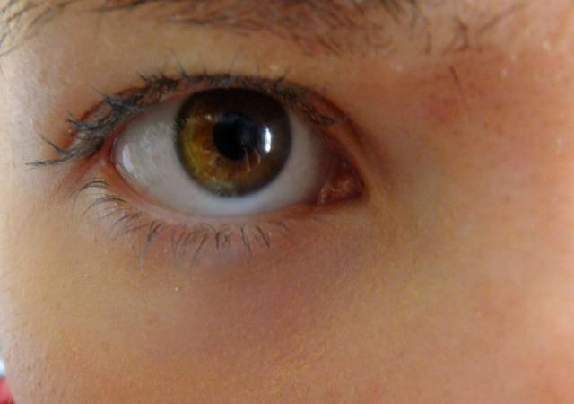 Красные пятна и другие высыпания под глазами у ребенка: обсудим основные причины