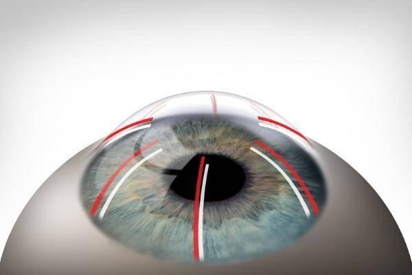 Лечение близорукости лазером: способы коррекции, как называется, показания, противопоказания (минусы), послеоперационный период