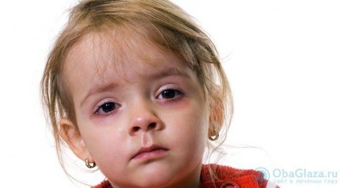 Синяки под глазами у ребёнка: причины, почему появляются круги, классификация комаровского