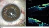 Имплантация интрастромальных колец интакс: проверенное лечение при кератоконусе