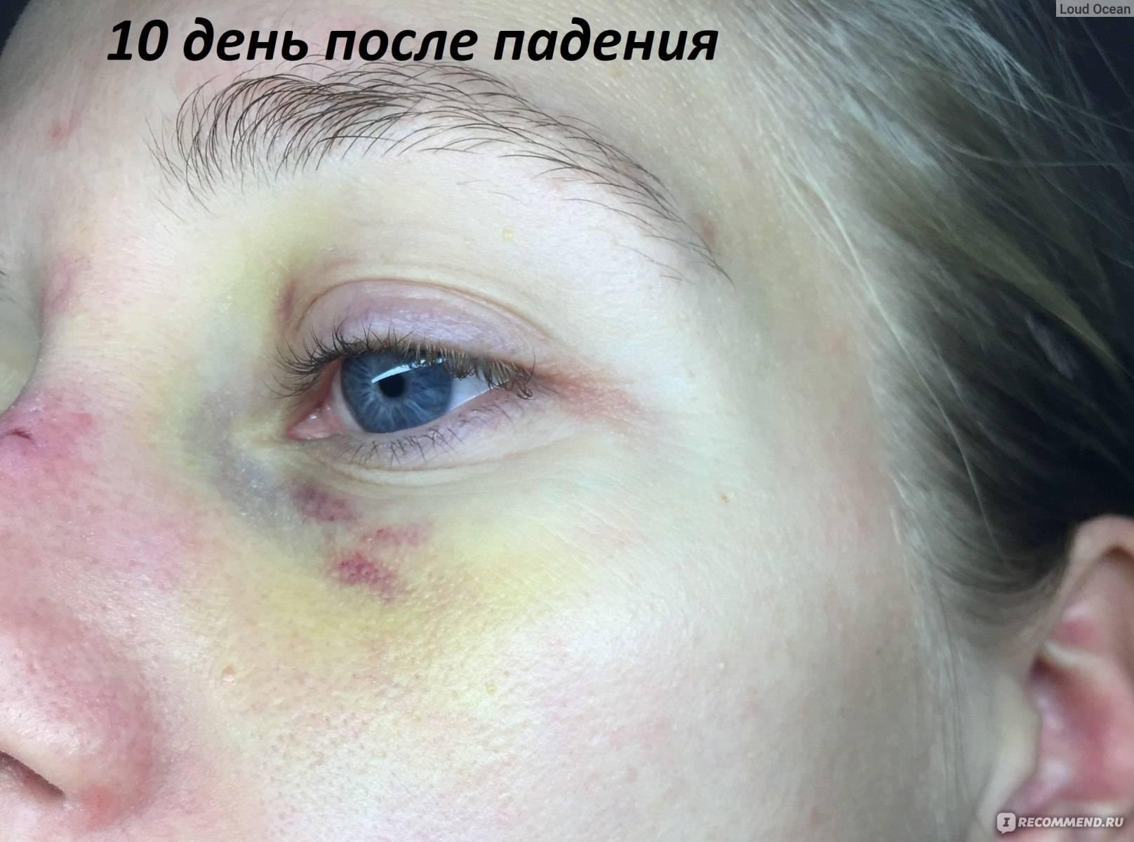 Гематома глаза после удара: лечение, как убрать на веке, под и над ним, вокруг зрительного органа