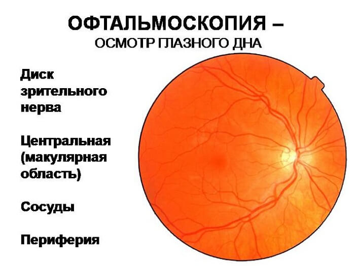 Офтальмоскопия (осмотр глазного дна), прямая и непрямая офтальмоскопия, цена офтальмоскопии в клинике цэлт.