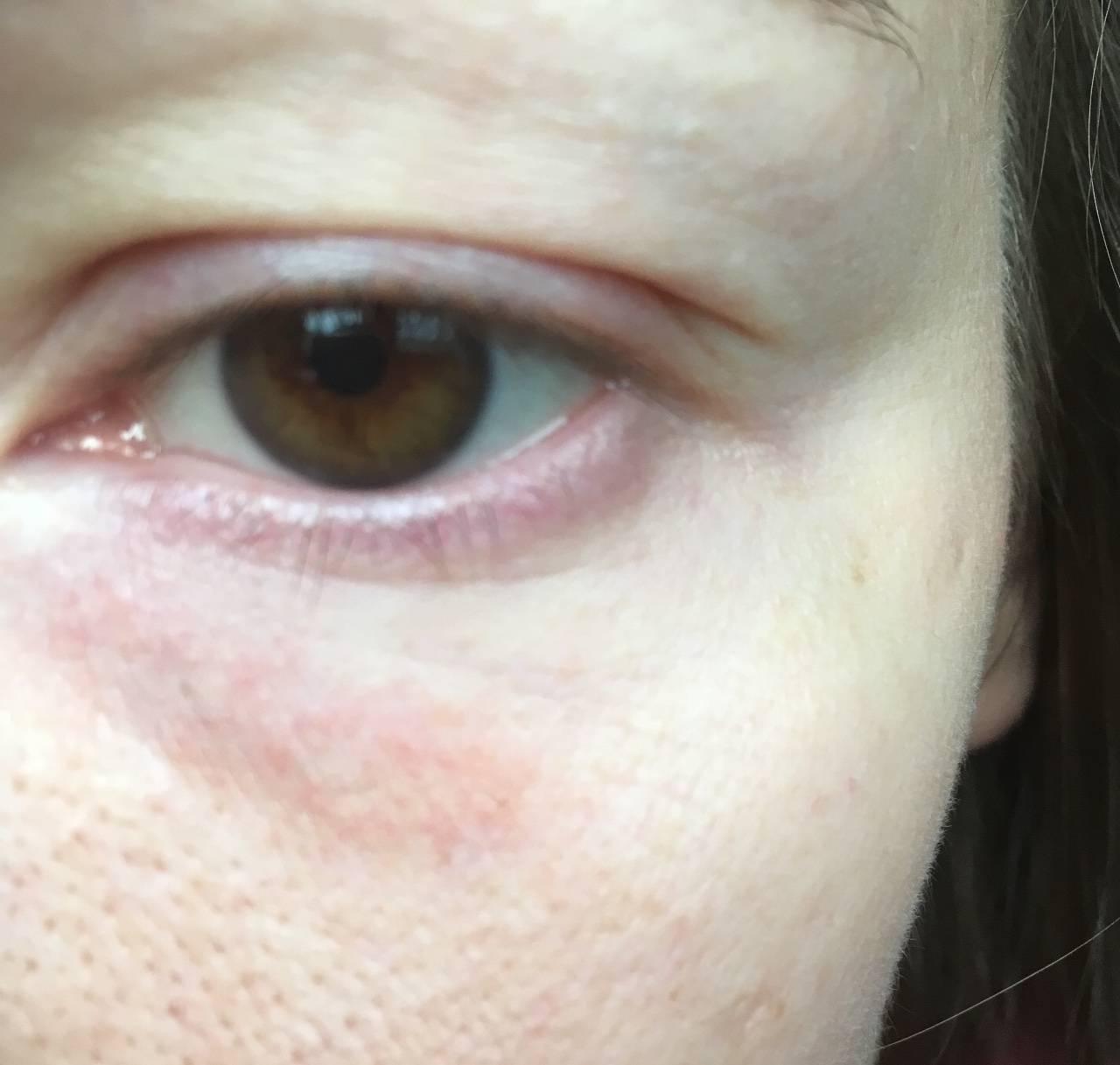 Почему болят и чешутся глаза: причины и действенное лечение
