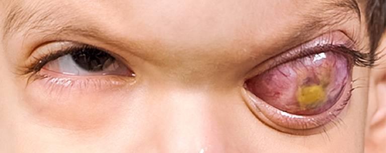 Методы борьбы с раком глаза у детей и взрослых