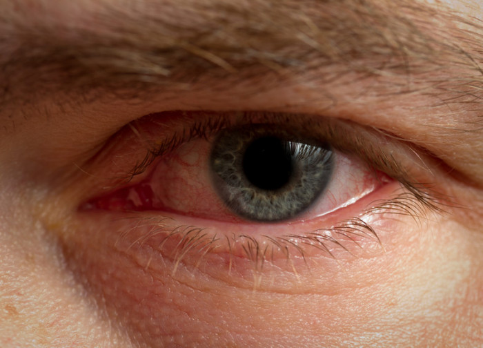 Что означают стеклянные глаза у человека oculistic.ru что означают стеклянные глаза у человека