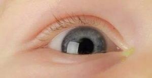 Гноятся глаза у ребенка - чем промыть и как лечить медикаментозными или народными препаратами