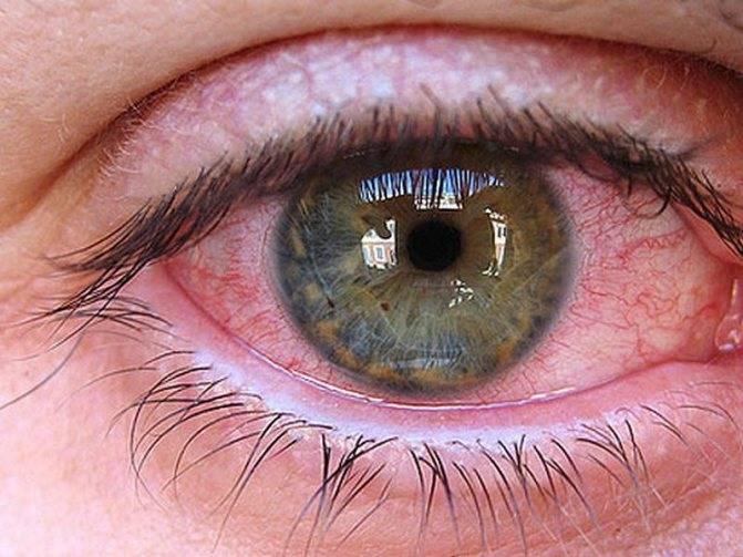 Продуло глаз: симптомы и лечение