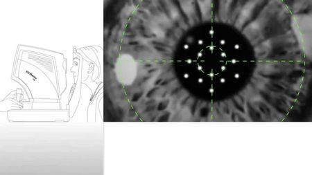 Как проводится рефрактометрия: показания для проведения и расшифровка результатов