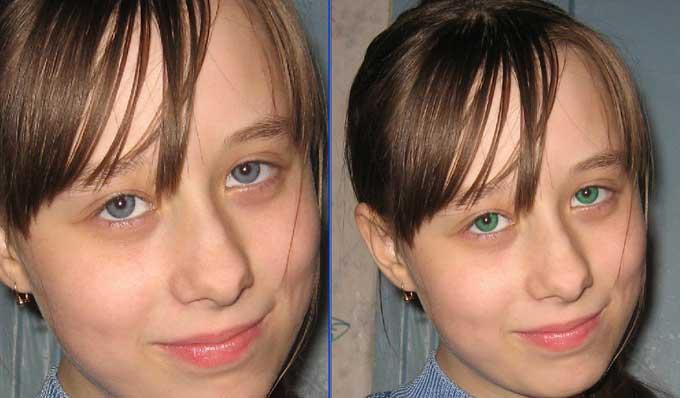Лазерная операция по смене цвета глаз - описание и особенности проведения процедуры