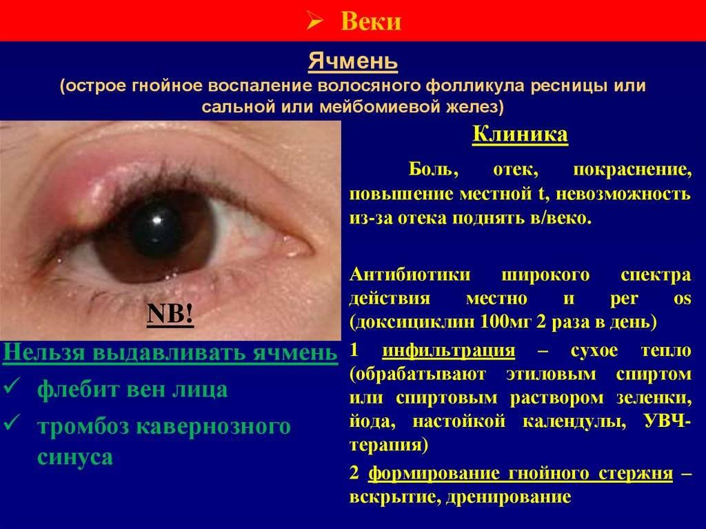 Ячмень: симптомы, профилактика, лечение. когда идти к врачу?