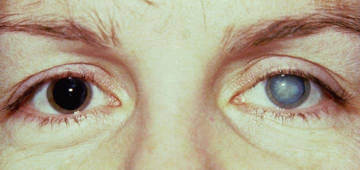 Увеит глаза: симптомы, лечение, причины и последствия
