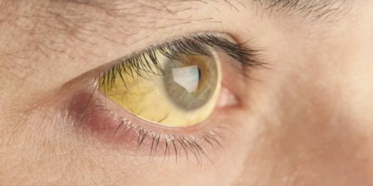 У новорожденного желтые белки глаз – почему у ребенка желтуха