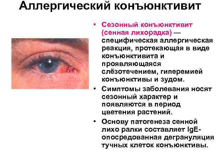 """Гиперемия конъюнктивы глазного яблока - виды, причины и лечение. портал """"московская офтальмология"""""""