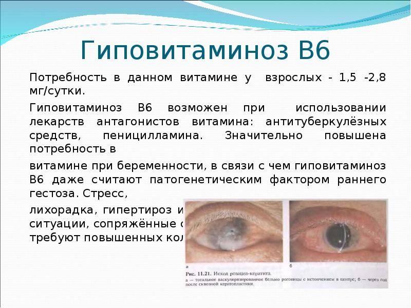 Почему при недостатке витамина а в организме возникает куриная слепота. куриная слепота: где притаилась угроза