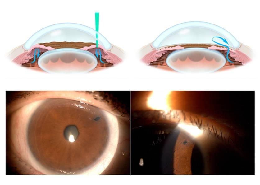 Лазерное лечение глаукомы: стоимость операции лазером, отзывы