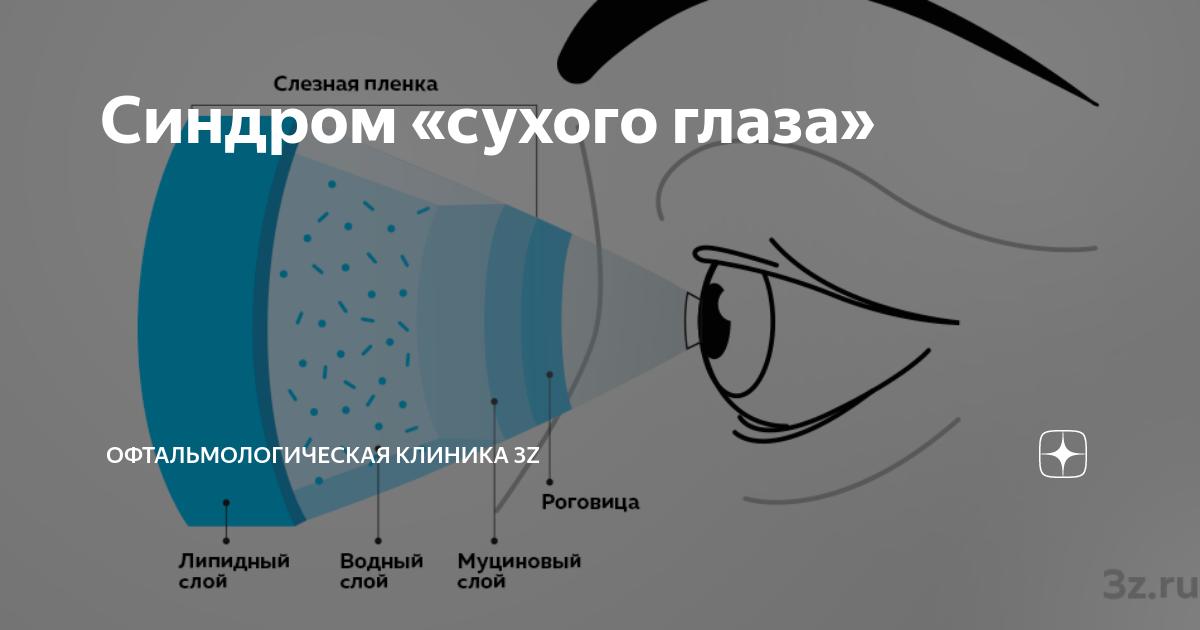 Чем лечить синдром сухого глаза – признаки у взрослого и лечение