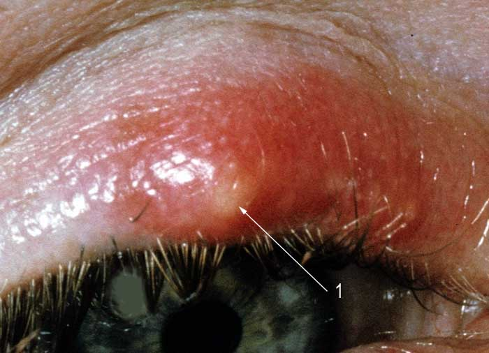 Мейбомиевый блефарит - симптомы и лечение, фото, отзывы о лечении мейбомиевого блефарита | медицинский портал spacehealth