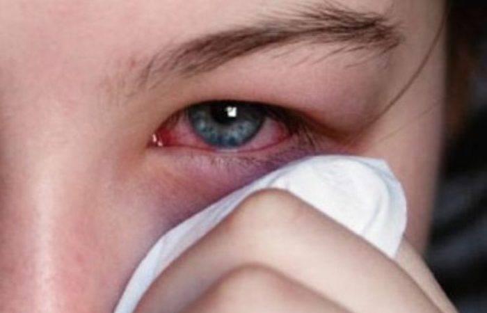 19.02.2020 • что такое глазной грипп? • горняк22