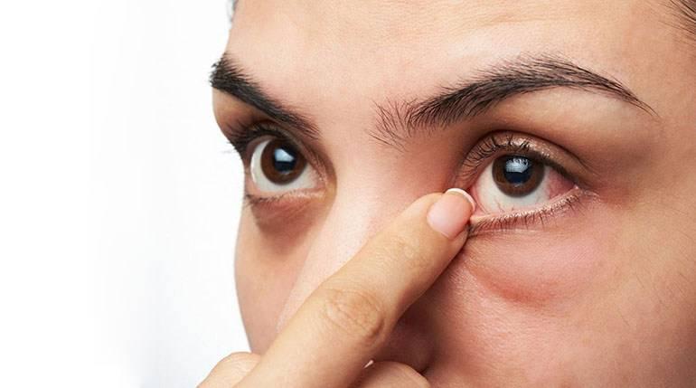 Блефароконъюнктивит глаз и его лечение: причины и симптомы заболевания, правила терапии