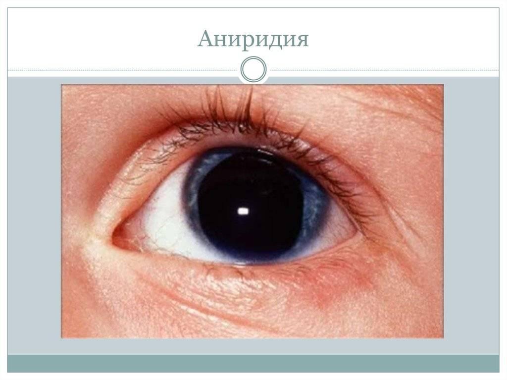 Аниридия: причины, симптомы, лечение, что это такое, вероятность наследования отсутствия радужки, диагностика, фото