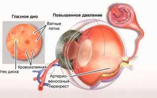 Повышенное глазное давление у ребенка симптомы
