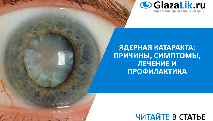 Здоровье требует бдительности: как вовремя распознать катаракту и не лишиться зрения?
