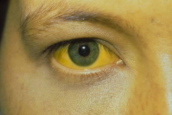 Пожелтел белок глаз: причины, симптомы, диагностика, лечение, последствия и рекомендации врачей - sammedic.ru