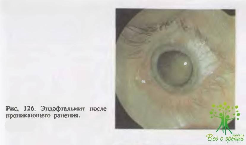 Эндофтальмит глаза симптомы причины и лечение