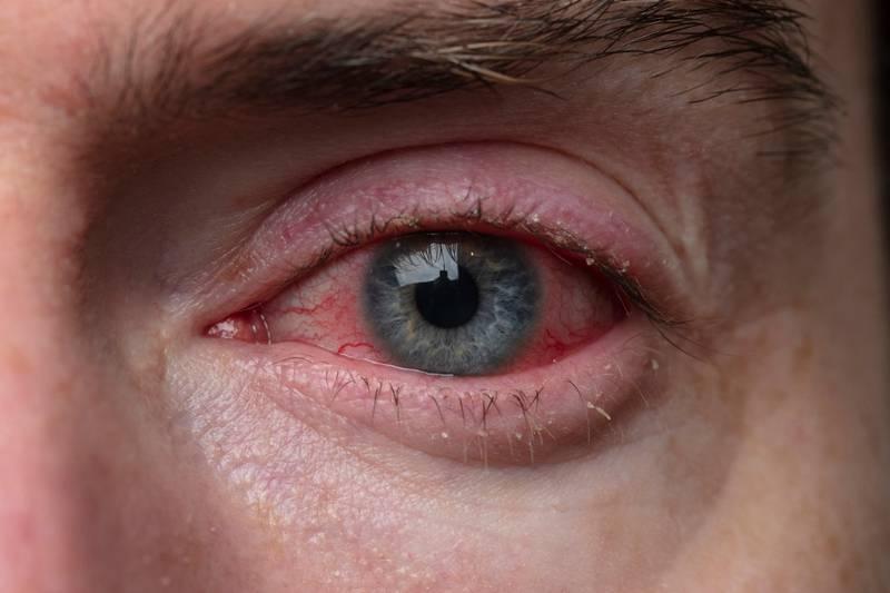 Хламидийный конъюнктивит - причины, симптомы и лечение