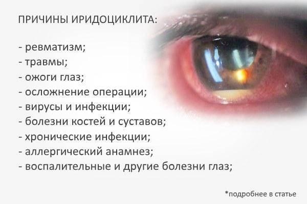 Увеит: симптомы, лечение, причины и диагностика глаз у взрослых