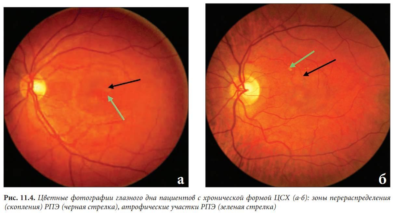 Центральная серозная хориоретинопатия: лечение цсхрп, цсх глаза, хориопатия