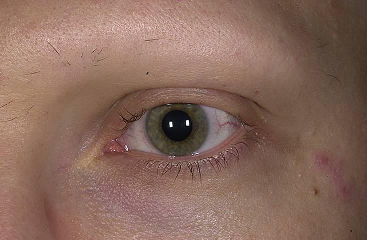 Микрофтальм - причины, симптомы и лечение. московская глазная клиника - опытные врачи, высокие результаты, доступные цены!