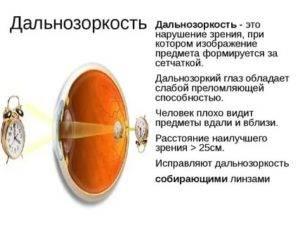В линзах мутно видно вблизи: почему стало плохо при усилении оптического показателя, после ношения ночных контактных средств, что делать, чтобы не ухудшить зрение?