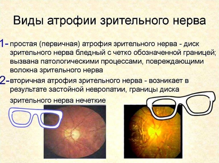Атрофия зрительного нерва: что это такое, причины, лечение
