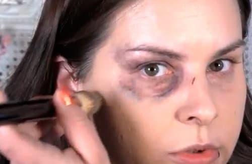 Как избавиться от синяков под глазами от удара: лечение, что делать при опухоли, лучшее средство помогает убрать отек, чем лечить
