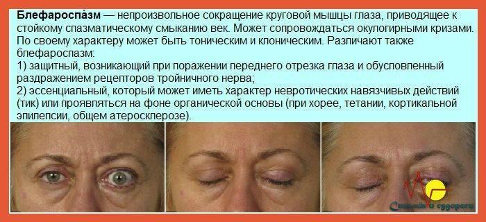 Нервный тик глаза и других частей тела: причины и лечение у детей и взрослых
