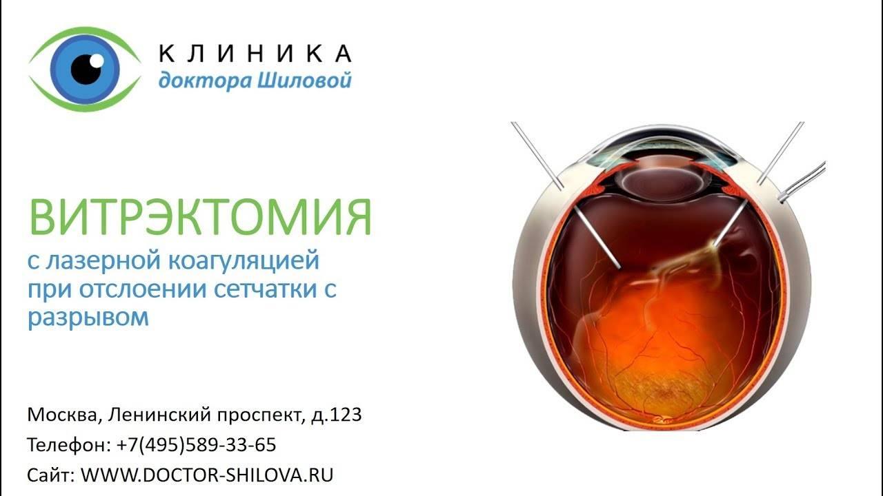 Витрэктомия что это как проводят последствия отзывы после операции - мед портал tvoiamedkarta.ru