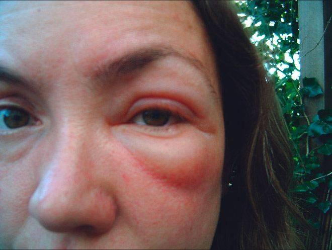 Основные симптомы аллергии на глазах