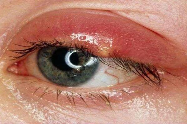Появился на глазу ячмень: что делать - 9 способов лечения