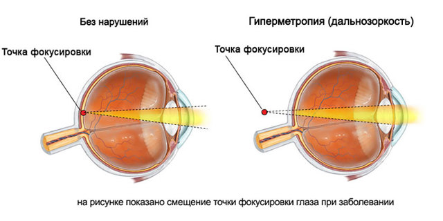 Дальнозоркость или гиперметропия слабой степени — что это такое?
