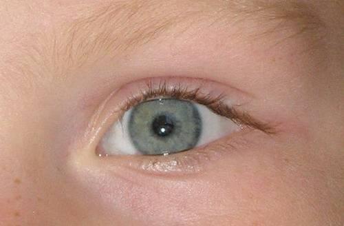 Почему бывают желтые белки глаз у новорожденных