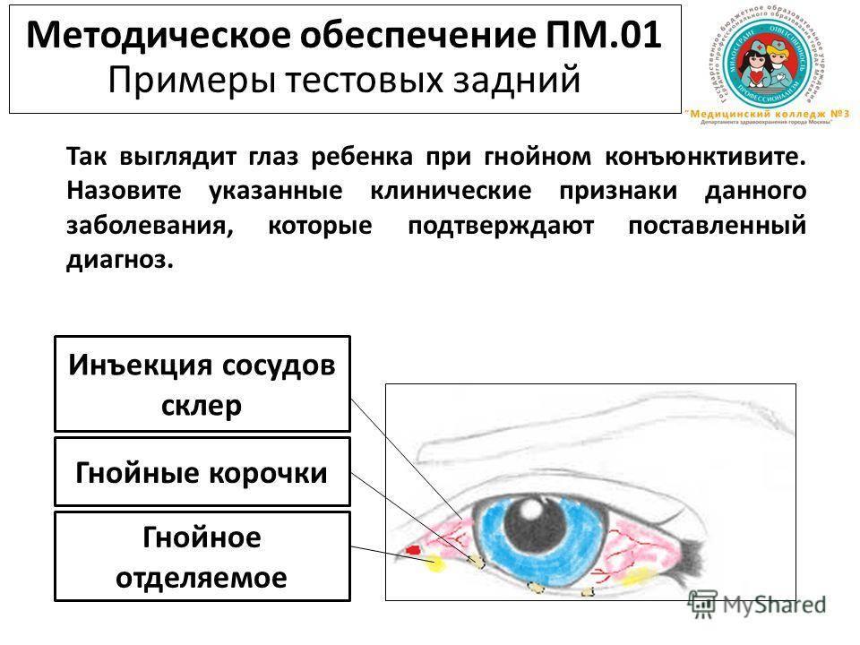Уколы в глаза: виды и препараты для инъекций в глазное яблоко