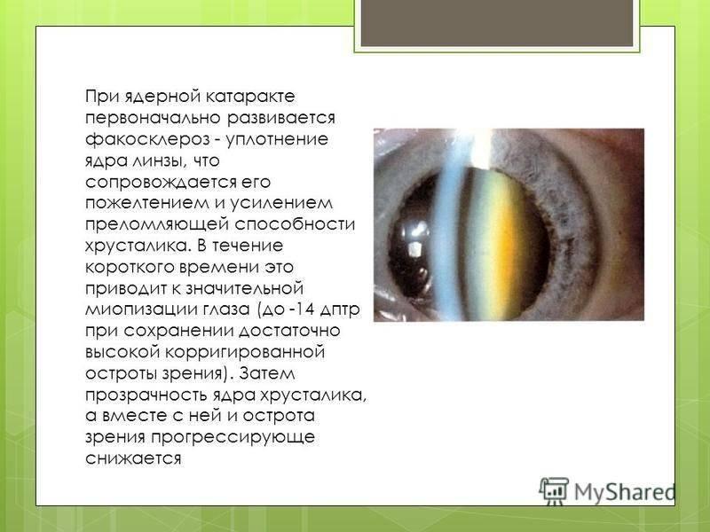 Факосклероз хрусталика глаза – лечение возрастной дальнозоркости, коррекция зрения