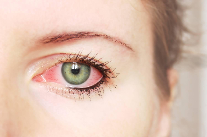 Капли для глаз при линзах - можно ли капать тауфон, лизин
