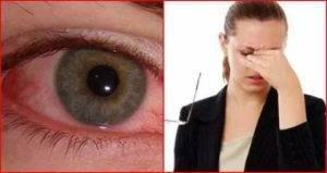 Как правильно промыть глаз в домашних условиях и чем это можно сделать