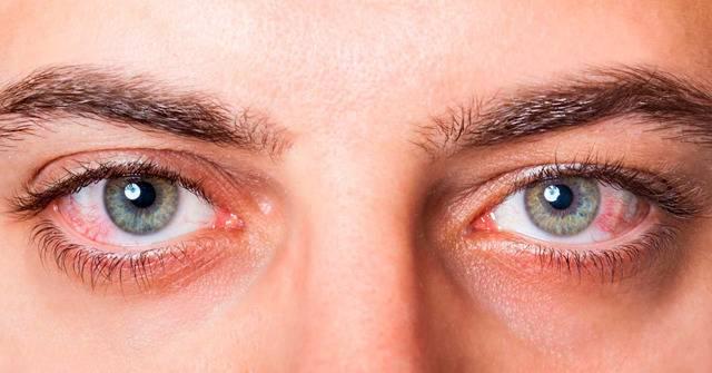 Грибок глаз: симптомы (фото) и лечение грибка на веках и глазном яблоке