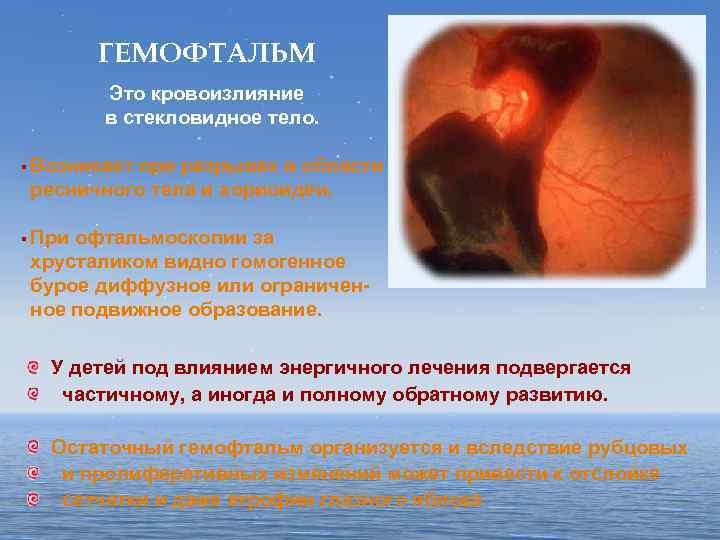 Кровоизлияние в склеру глаза - причины и лечение